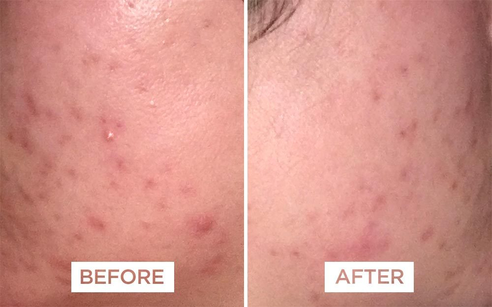 How I Cured My Cystic Acne in 3 Weeks
