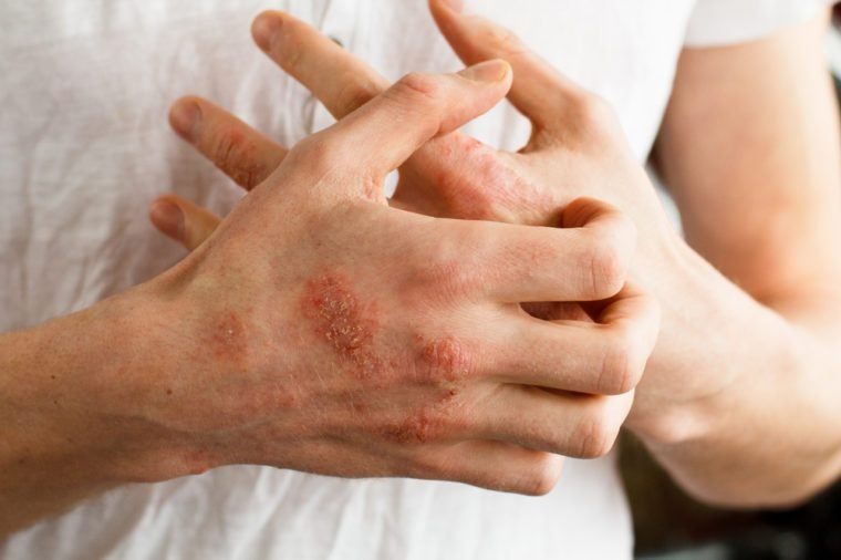 The problem with many people - eczema on hand. White background. Man itchind skin.