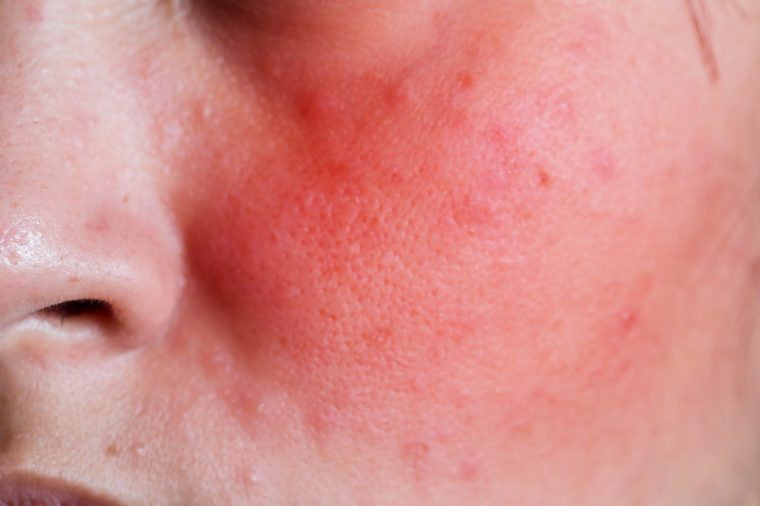 Face of a young woman with rash from an allergic reaction to cosmetics, closeup.