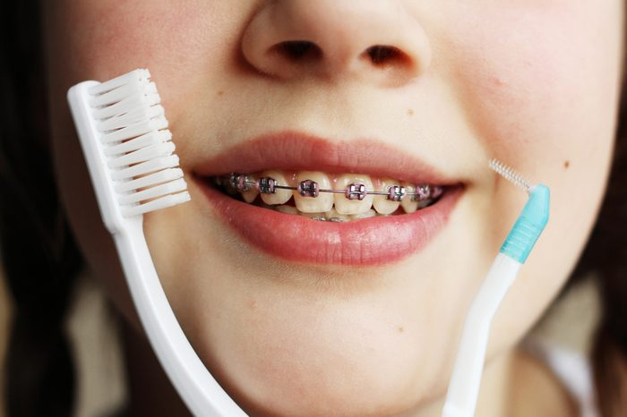Teenage girl with the braces on her teeth is smiling,portrait of teen girl showing dental braces and toothbrush for braces