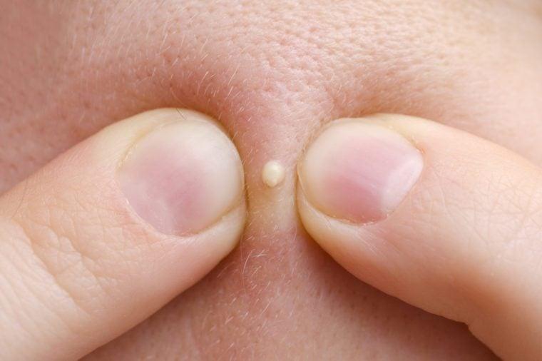 squeezing pimple macro