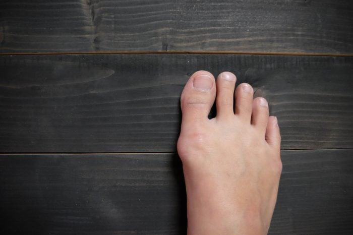 Hallux valgus on wooden background, bunion in foot