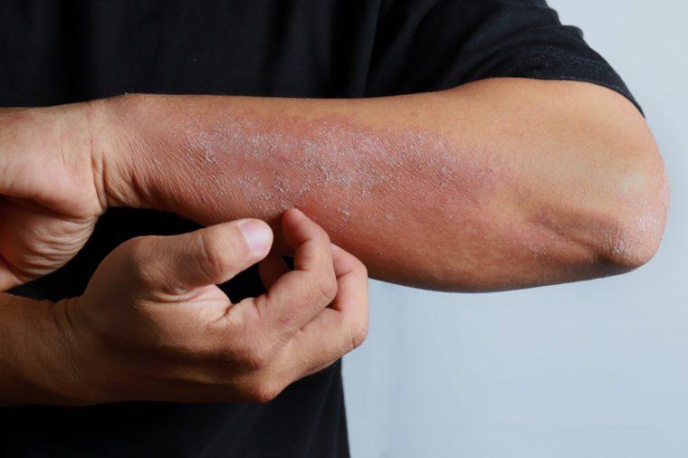 Close up dermatitis on skin, ill allergic rash dermatitis eczema skin of patient , atopic dermatitis symptom skin detail texture , Fungus of skin ,The concept dermatology, treatment fungal and fungal