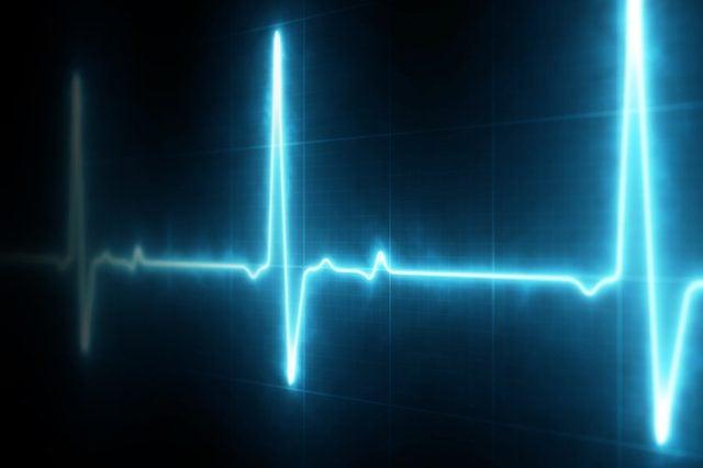 heart monitor_funny 911 calls