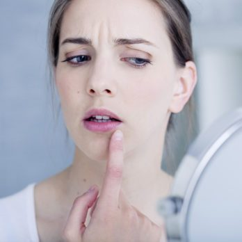 Why Pimples Keep Showing Up in the Same Place