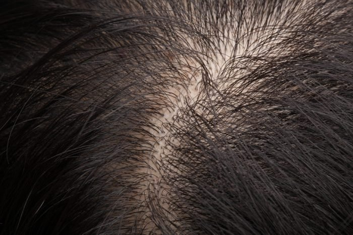 Closeup head with thinning hair and scalp