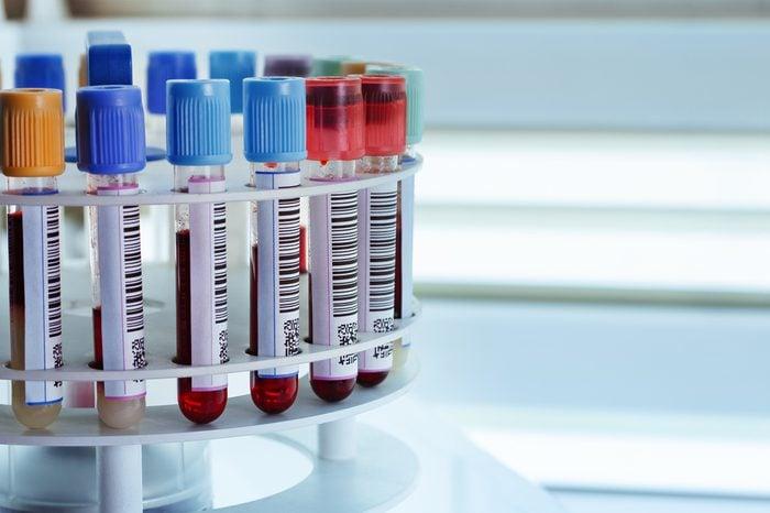 tubes prepared in lab centrifuge machine blood bank