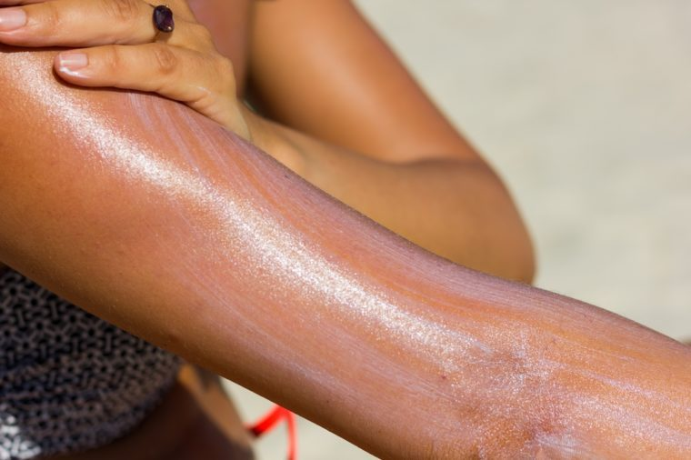 Close up on woman's upper arm and hand spreading sun cream at the beach on a hot, sunny day. Tanning, sunblock spread, skin care, ultraviolet rays protection, cancer prevention concept