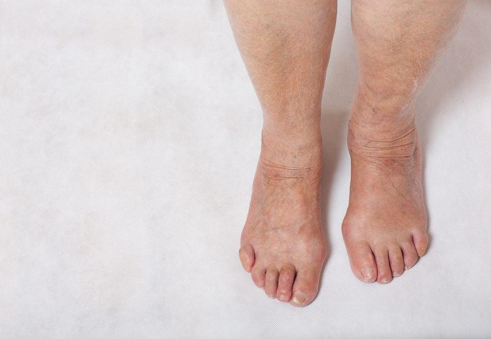 swollen feet of senior woman