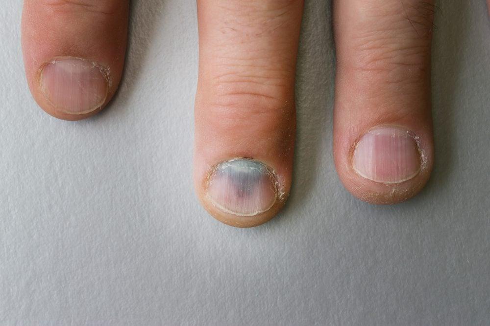 black mark on fingernail