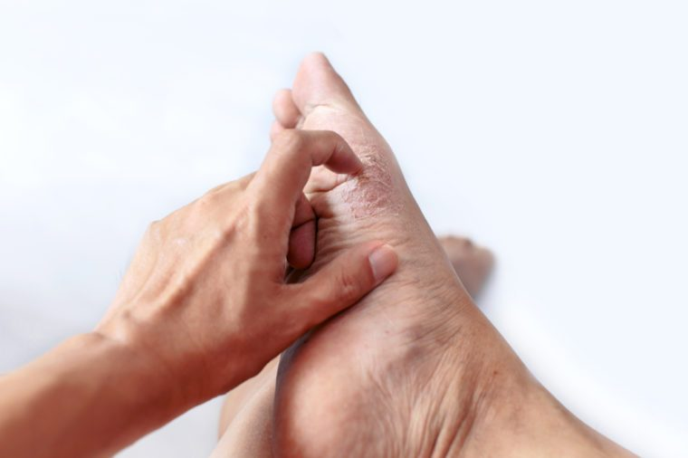 """finger scratching at a medical symptom called """"Athlete's foot"""". It is a common skin infection of the feet caused by fungus."""