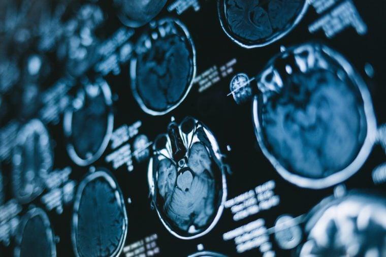 Magnetic resonance scan of the brain. MRI head scan. Medicine, science