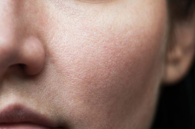 pores on the face. oily skin of the face