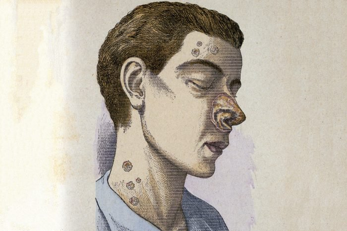 Man suffering from tertiary Syphilis. From Jules Rengade Le Grands Maux et les Grands Remedes, Paris, c1890.