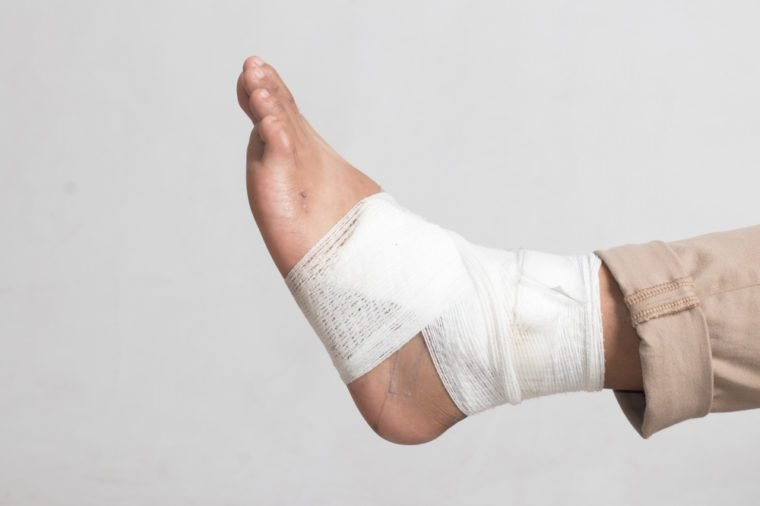 Foot with sprained ankle wrapped with bandage for recovery