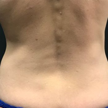 Does CoolSculpting Work? Here's What Happened When I Tried It