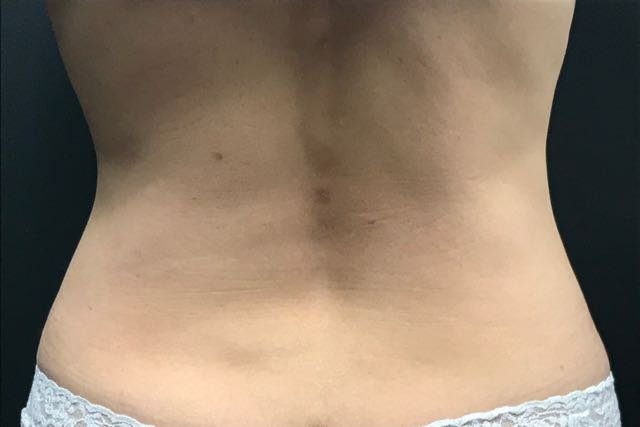 Does Coolsculpting Work Here S What Happened When I Tried It