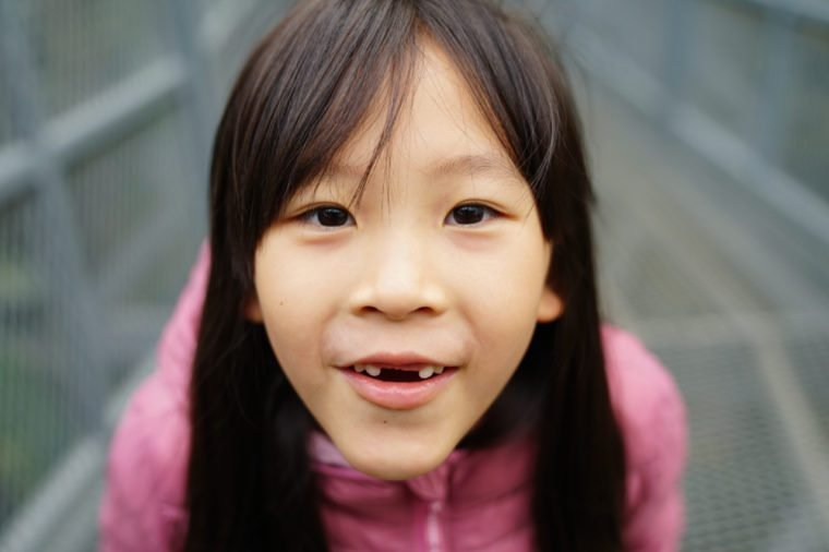 Girl smile with broken tooth