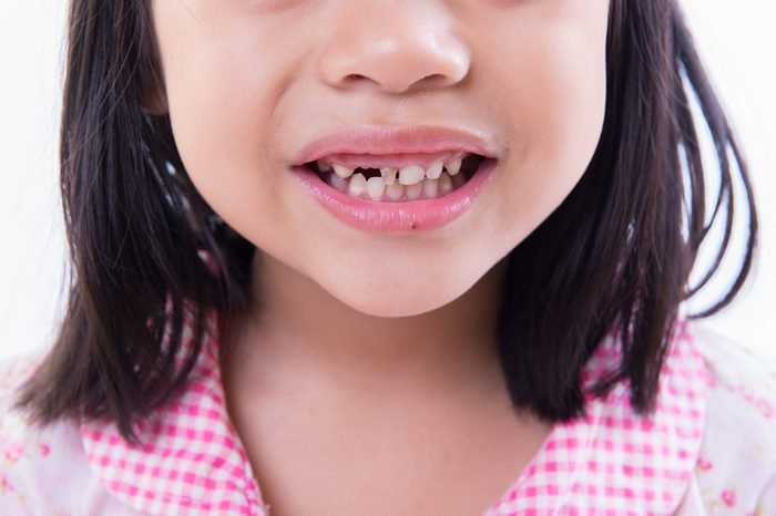 a child smile with missing teeth