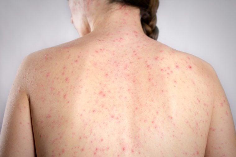 Varicella concept. girls back skin bubble rash