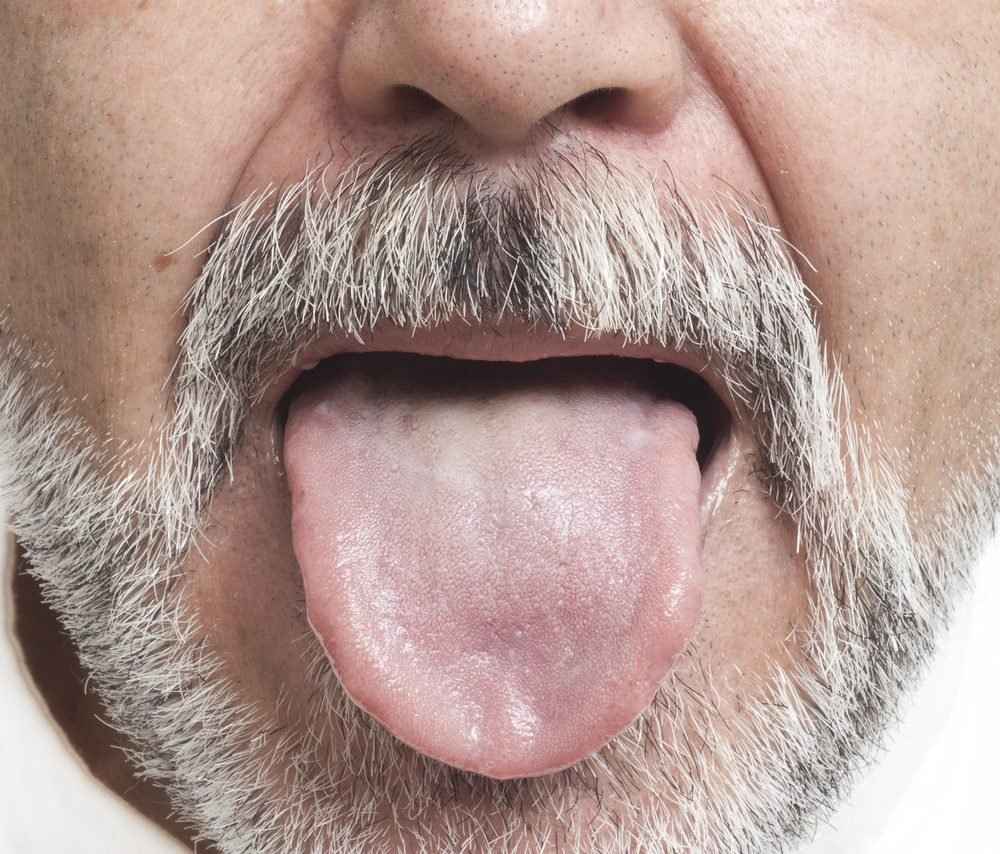 Man sticking out his tongue