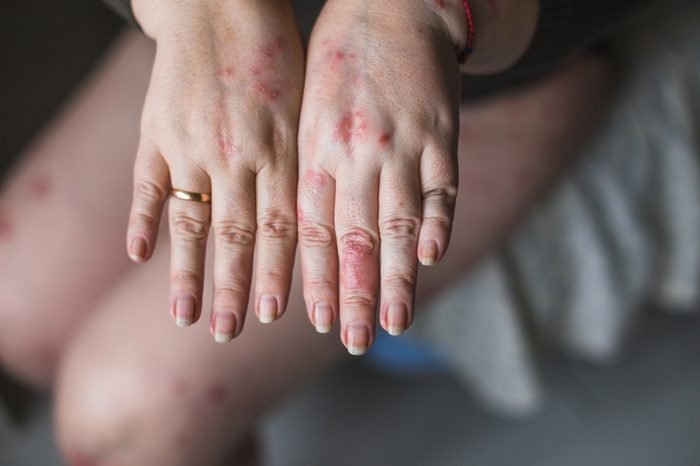 Psoriasis vulgaris on the womans hands with plaque, rash and patches on skin, isolated on white background. Autoimmune genetic disease. health concept
