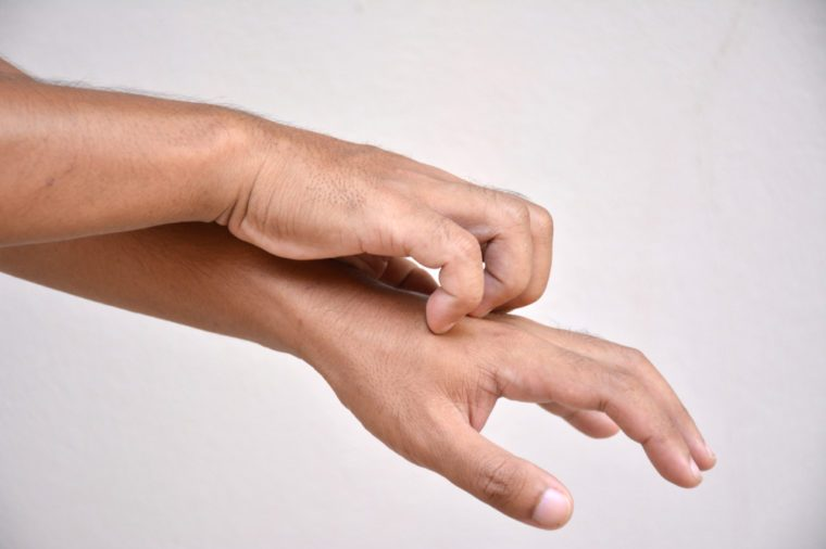 man scratching arm.
