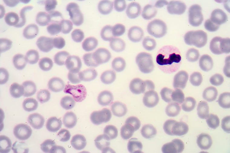 Malaria. Normal and infected red blood cells. Malaria is a disease caused by a parasite called Plasmodium that is spread to humans by the bite of an infected mosquito