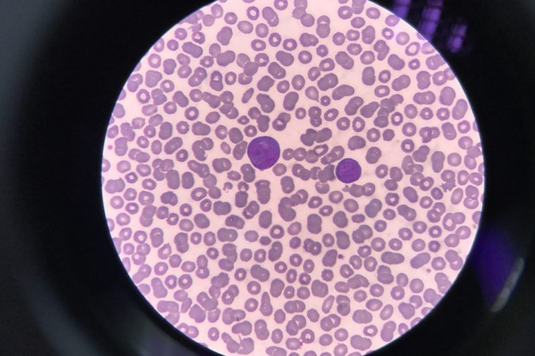 Human blood smear view from microscope. Show Abnormal white blood cell Called Atypical lympphocyte.Found in dengue fever