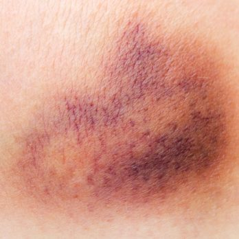 The Real Reason You Bruise So Easily