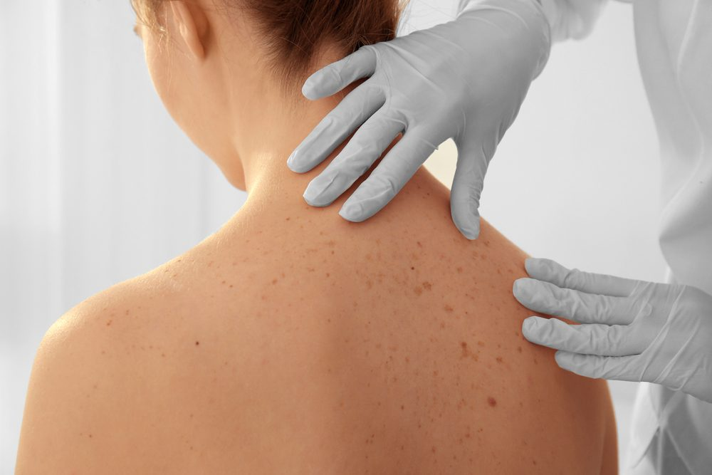 Skin Problems That Could Be a Sign of Serious Disease | The