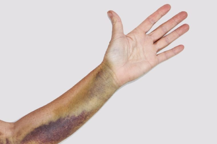 Intense bruising from a dislocated elbow joint, break of the olecranon bone and ligament damage on a mature woman. The bruise is approximately three weeks old and starting to recede.