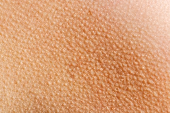 Human skin with goosebumps from the cold