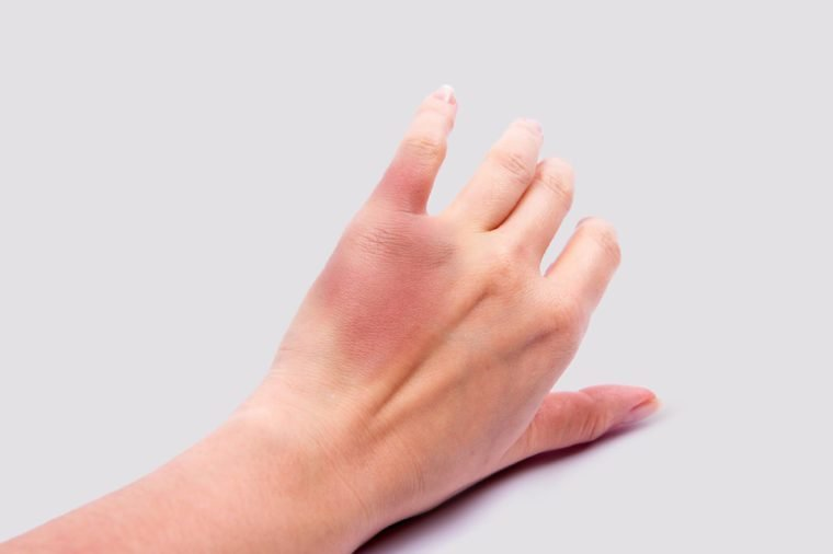 Woman's hand with a bruise