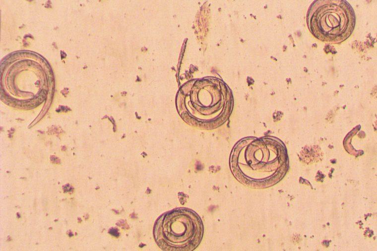 Trichinella spiralis - parasitic worm microscope