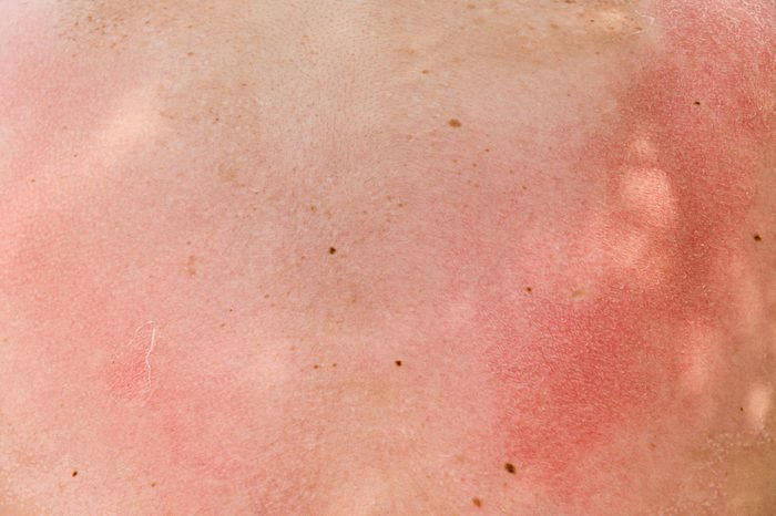 burnt skin sunburn a great extent, the sun, many small blisters closeup
