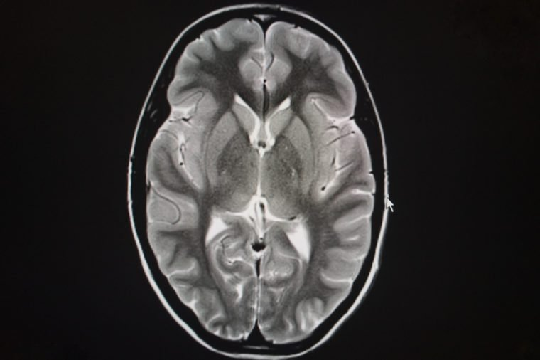 axial T2 magnetic resonance of the brain