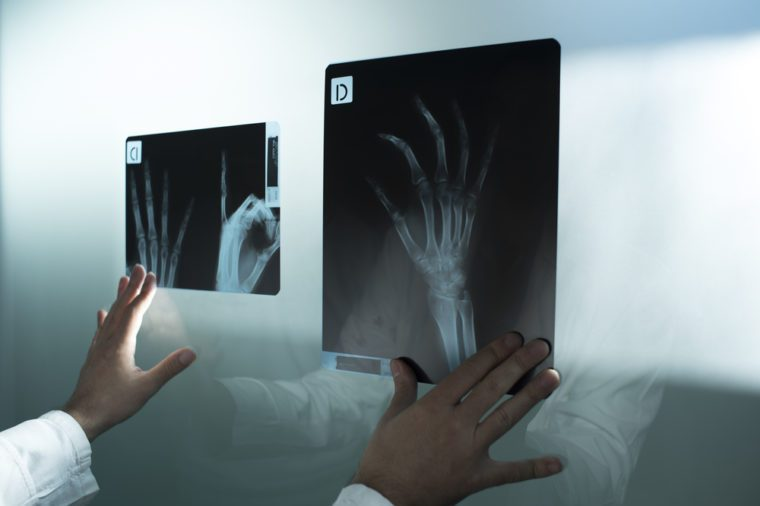 Examining the x ray of two hands