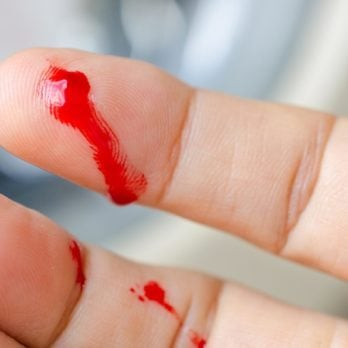 8 First Aid Tricks ER Doctors Wish You Knew
