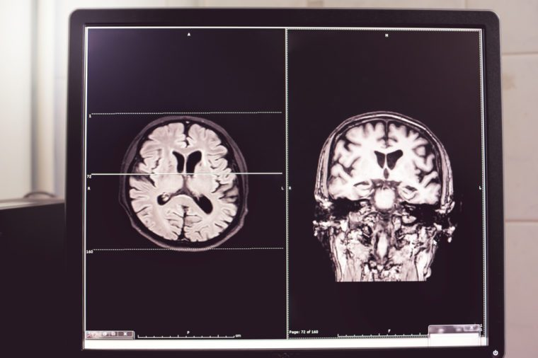 MRI brain of Dementia patientHippocampal atrophy grade 4 by MTA scaleTemporal atrophy
