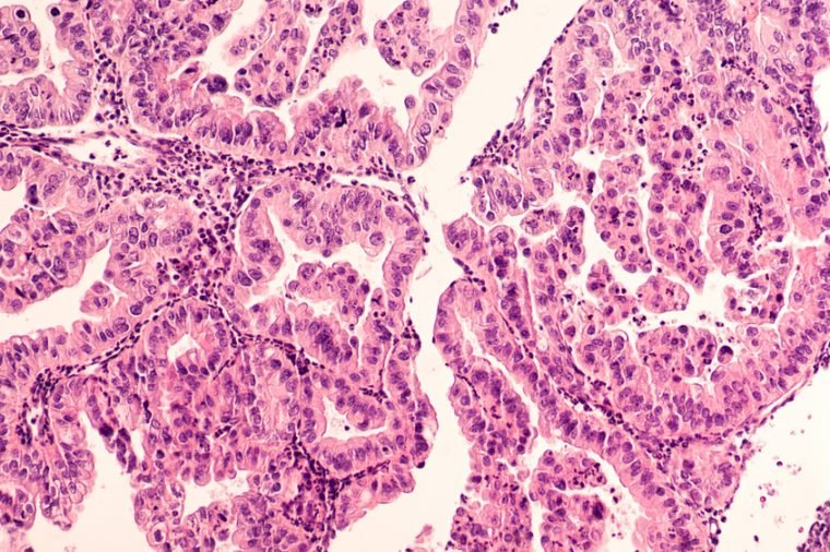 Ovarian Cancer Awareness: Micrograph of a serous papillary carcinoma (adenocarcinoma) of ovary, with intricately branching papillae. This tumor has a poor prognosis, as early detection is problematic.
