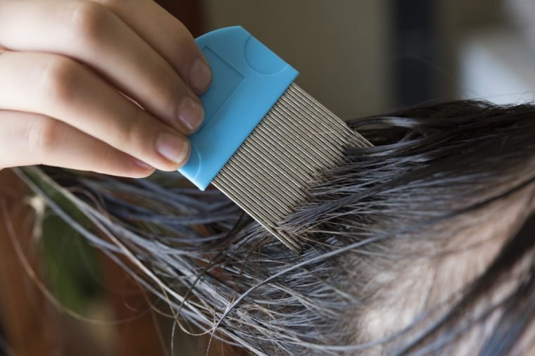a girl is doing head lice treating. a closed up shot.