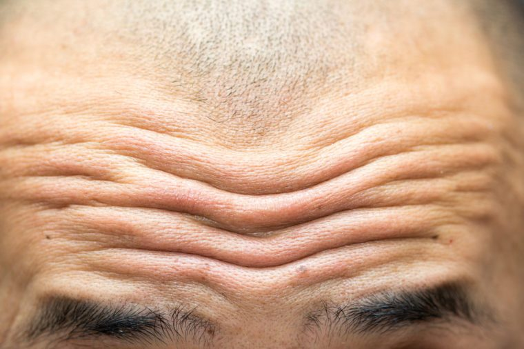close-up on wrinkled forehead