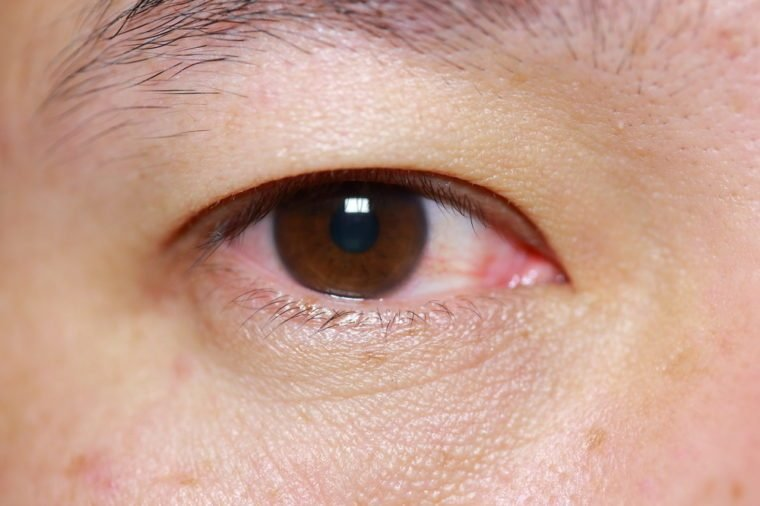 close up of mark injected viral conjunctivitis during eye examination, eye or after cry.