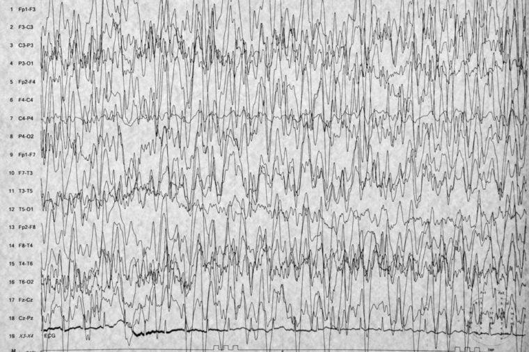 EEG brain wave on white background,Abnormal human brain wave,Seizure or Epilepsy on EEG background