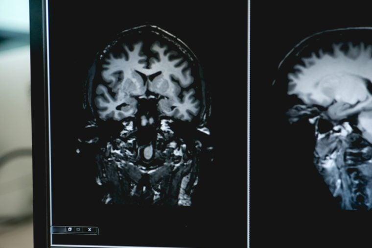 Dementia MRI brain for study alzheimer's disease