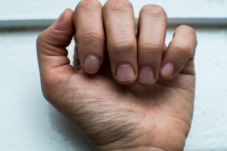 bitten nails