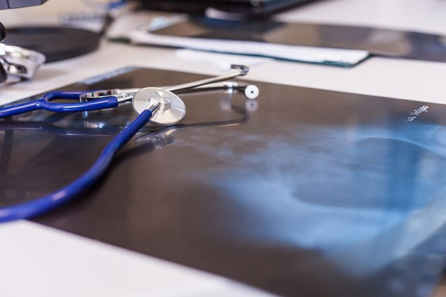 X-ray and stethoscope on a desk in doctor office