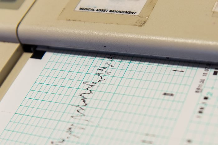 Printing of cardiogram report coming out from Electrocardiograph. Richter scale.