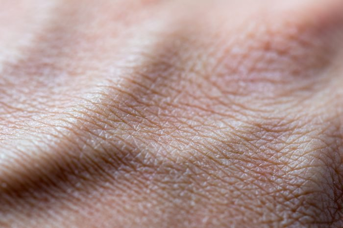 Human skin pattern dry, convex from the veins, Close up macro detail